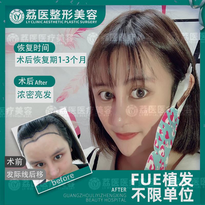 【签约治疗】FUE 女性发际线植发种植 不限单位